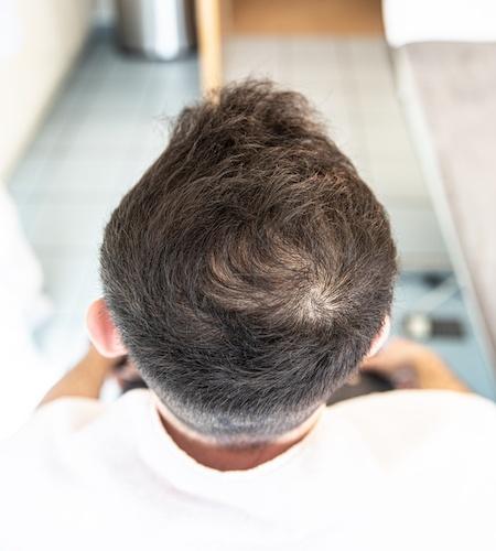 PRP-Behandlung Haare - Begutachtung