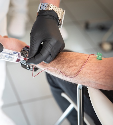 PRP-Behandlung Haare - Blutabnahme